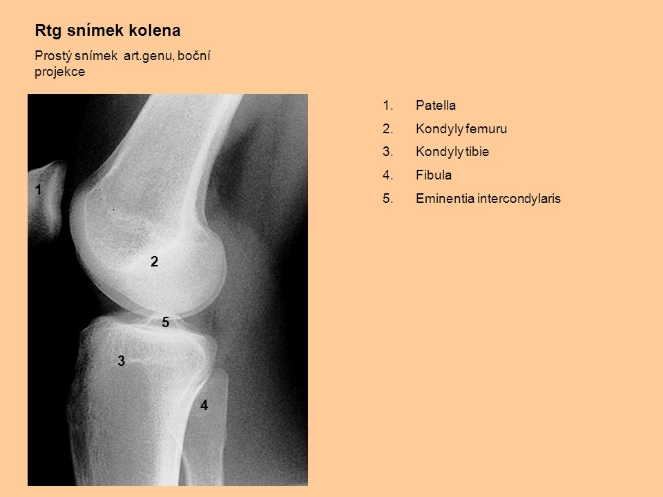 Rtg snímek kolena Prostý snímek art.genu, boční projekce 1.Patella 2.Kondyly femuru 3.Kondyly tibie 4.Fibula 5.Eminentia intercondylaris 1 2 3 4 5