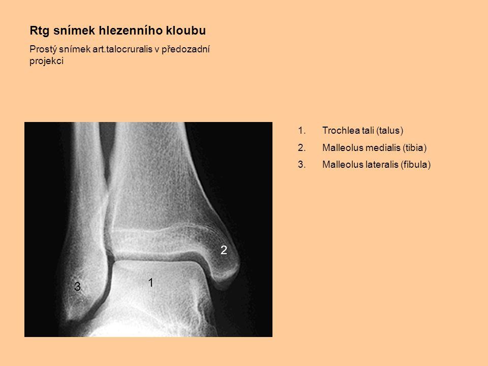 Rtg snímek hlezenního kloubu Prostý snímek art.talocruralis v předozadní projekci 1.Trochlea tali (talus) 2.Malleolus medialis (tibia) 3.Malleolus lat