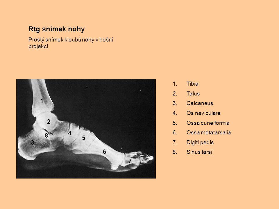 Rtg snímek nohy Prostý snímek kloubů nohy v boční projekci 1.Tibia 2.Talus 3.Calcaneus 4.Os naviculare 5.Ossa cuneiformia 6.Ossa metatarsalia 7.Digiti