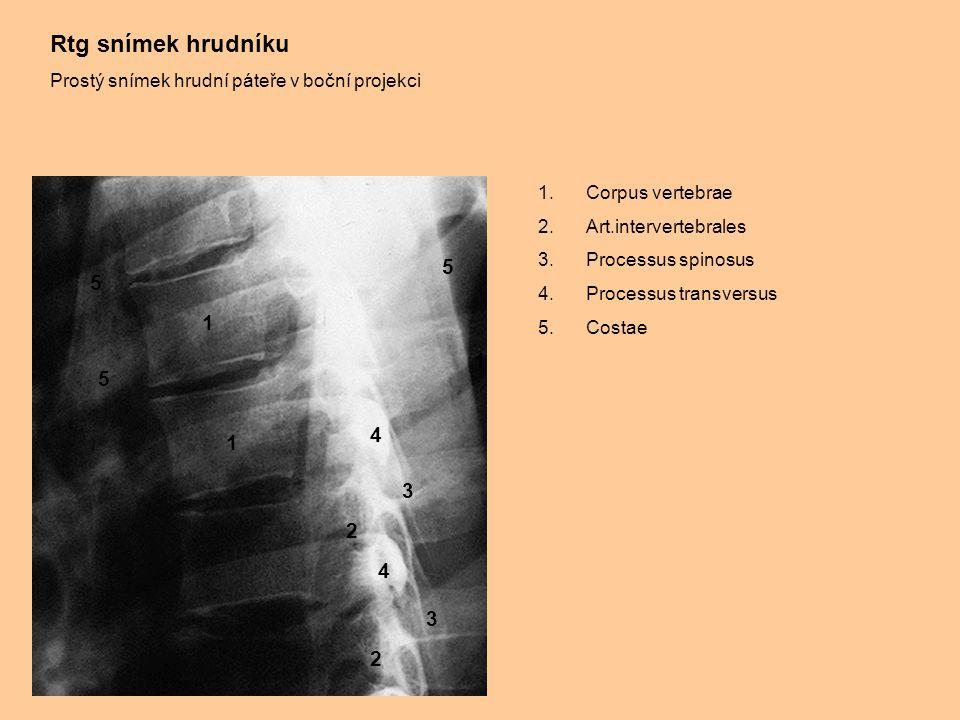 Rtg snímek hrudníku Prostý snímek hrudní páteře v boční projekci 1.Corpus vertebrae 2.Art.intervertebrales 3.Processus spinosus 4.Processus transversu