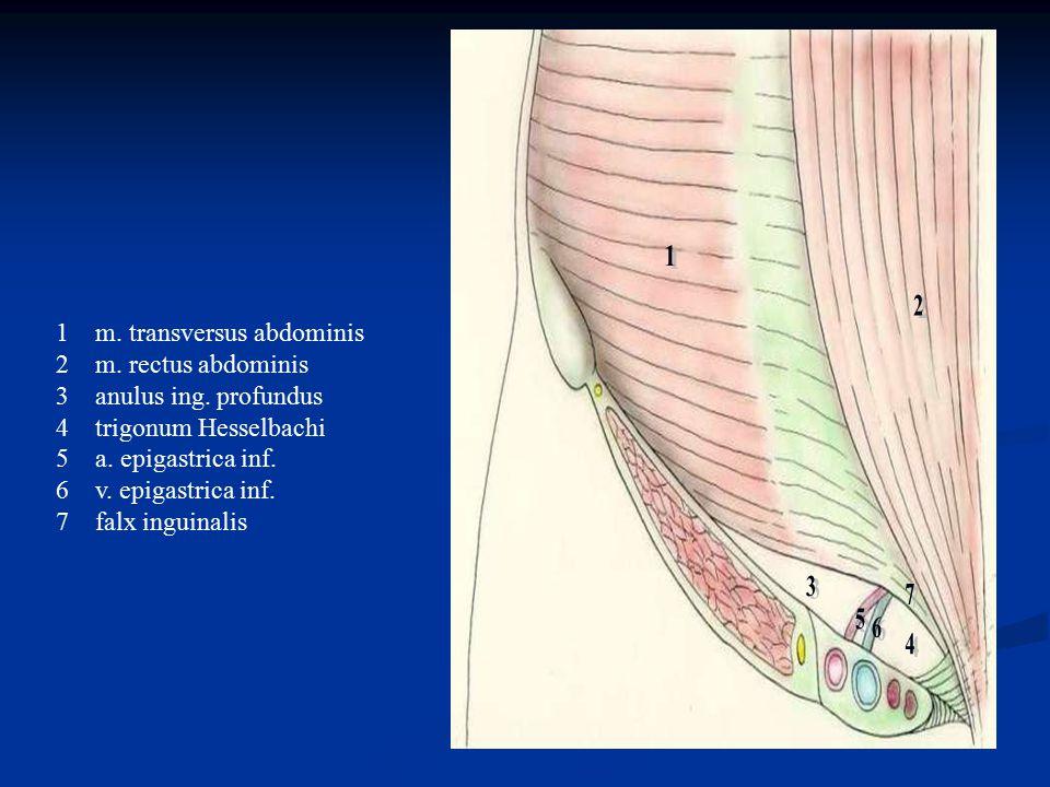 1m. transversus abdominis 2m. rectus abdominis 3anulus ing. profundus 4trigonum Hesselbachi 5a. epigastrica inf. 6v. epigastrica inf. 7falx inguinalis