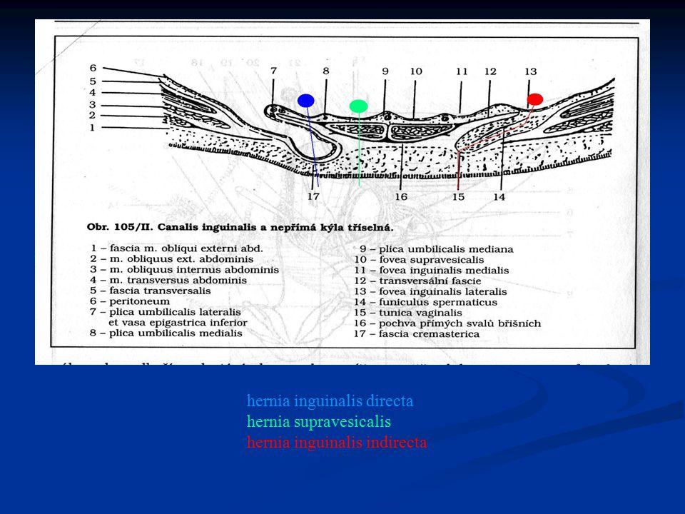 hernia inguinalis directa hernia supravesicalis hernia inguinalis indirecta