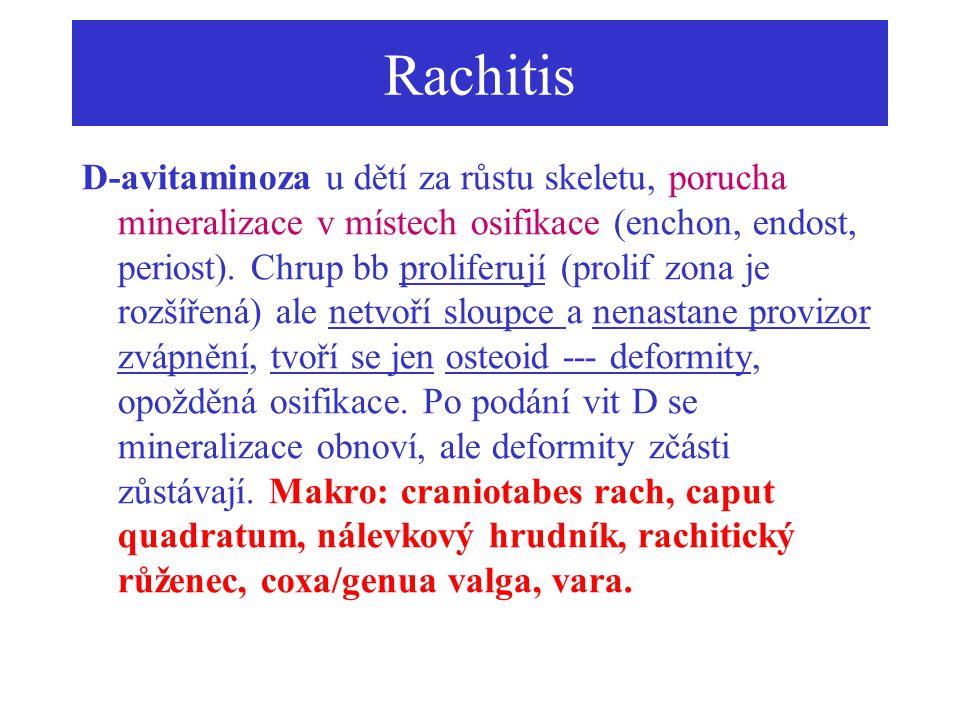 Rachitis D-avitaminoza u dětí za růstu skeletu, porucha mineralizace v místech osifikace (enchon, endost, periost). Chrup bb proliferují (prolif zona