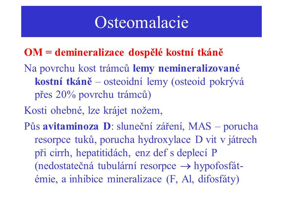 Osteomalacie OM = demineralizace dospělé kostní tkáně Na povrchu kost trámců lemy nemineralizované kostní tkáně – osteoidní lemy (osteoid pokrývá přes