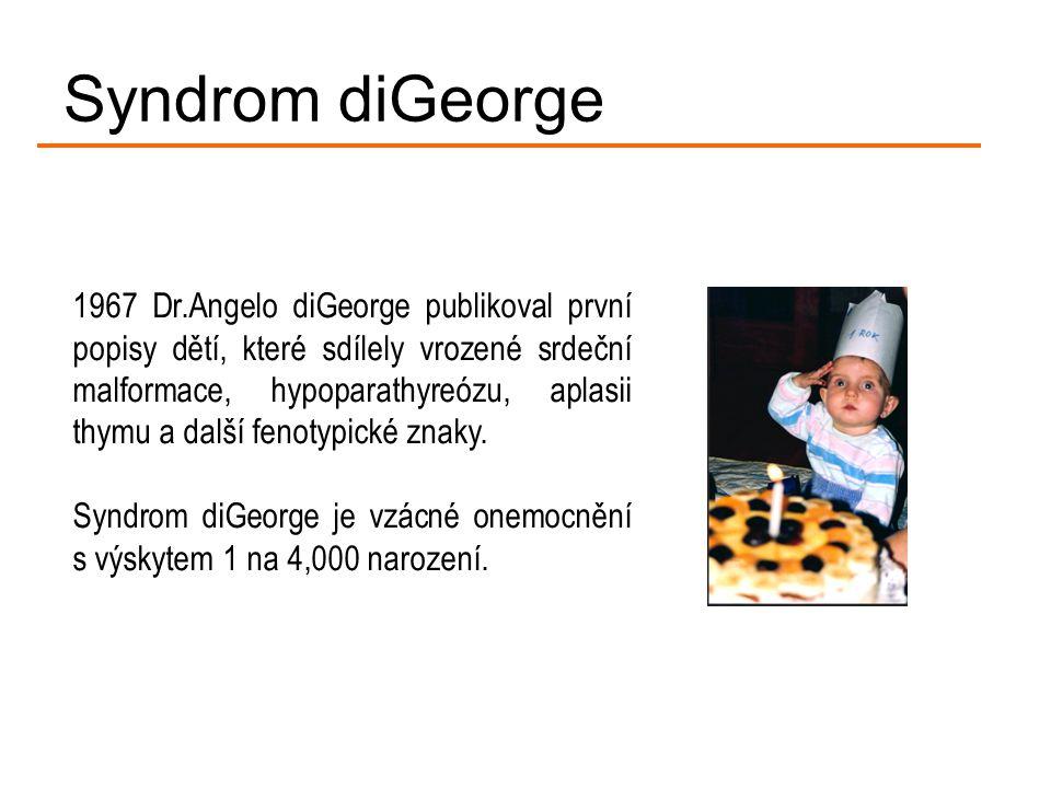 1967 Dr.Angelo diGeorge publikoval první popisy dětí, které sdílely vrozené srdeční malformace, hypoparathyreózu, aplasii thymu a další fenotypické zn