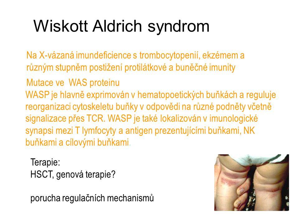 Wiskott Aldrich syndrom Na X-vázaná imundeficience s trombocytopenií, ekzémem a různým stupněm postižení protilátkové a buněčné imunity Mutace ve WAS