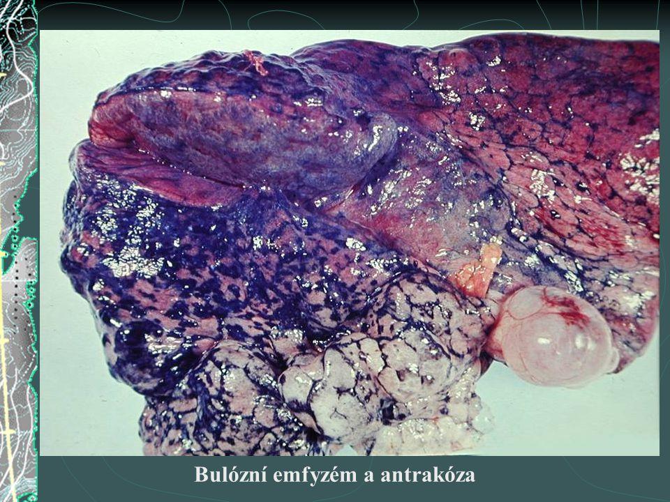 Bulózní emfyzém a antrakóza