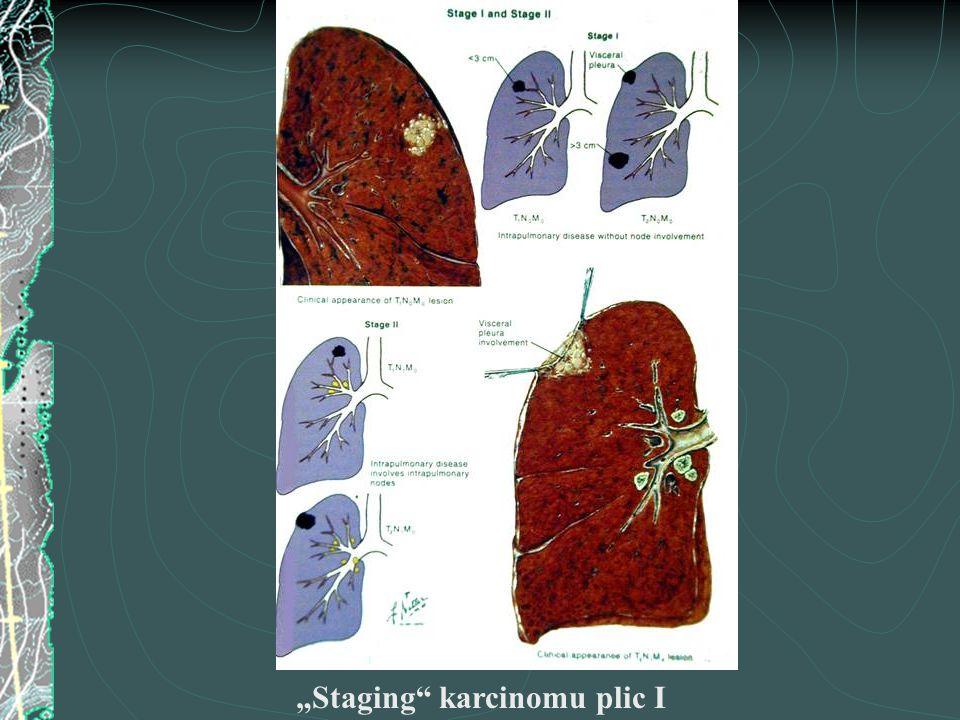 """""""Staging"""" karcinomu plic I"""