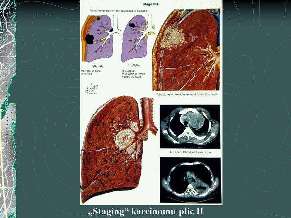"""Staging"" karcinomu plic II"