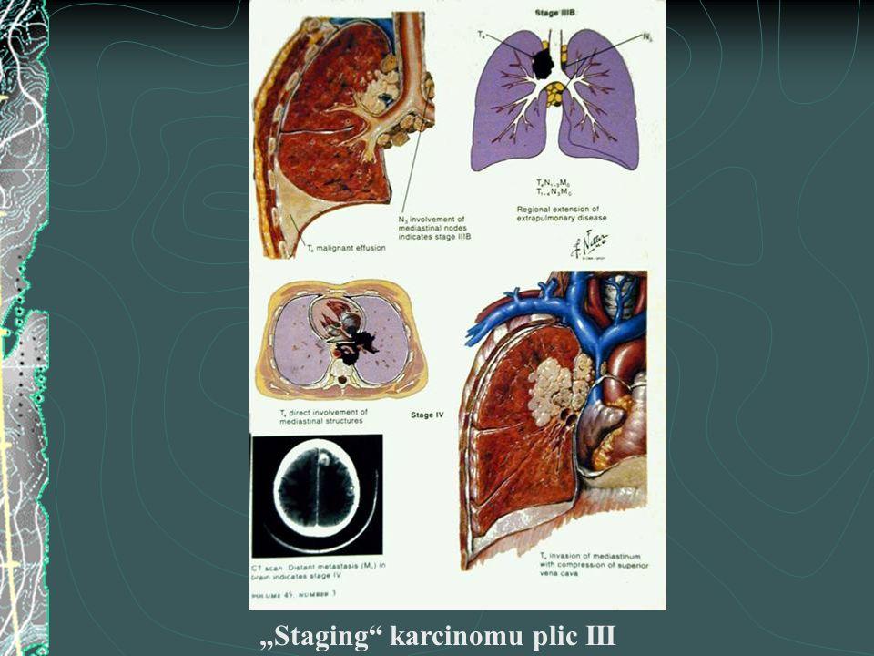 """""""Staging"""" karcinomu plic III"""
