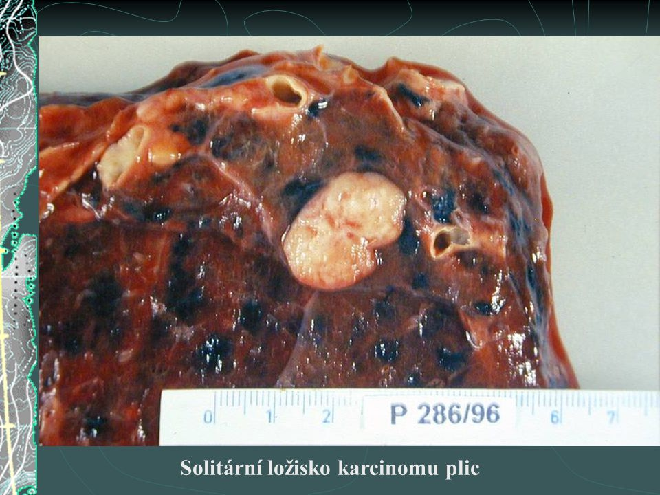 Solitární ložisko karcinomu plic