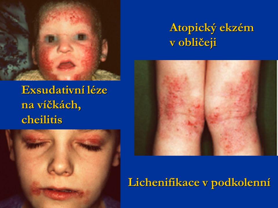 Atopický ekzém v obličeji Exsudativní léze na víčkách, cheilitis Lichenifikace v podkolenní