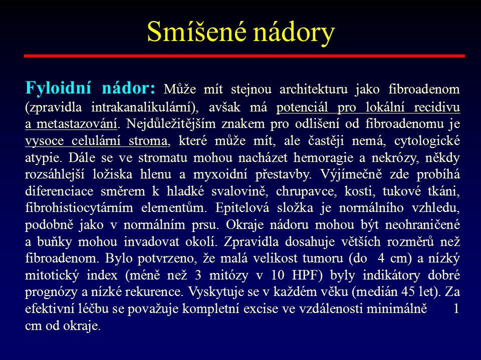 Smíšené nádory Fyloidní nádor: Může mít stejnou architekturu jako fibroadenom (zpravidla intrakanalikulární), avšak má potenciál pro lokální recidivu