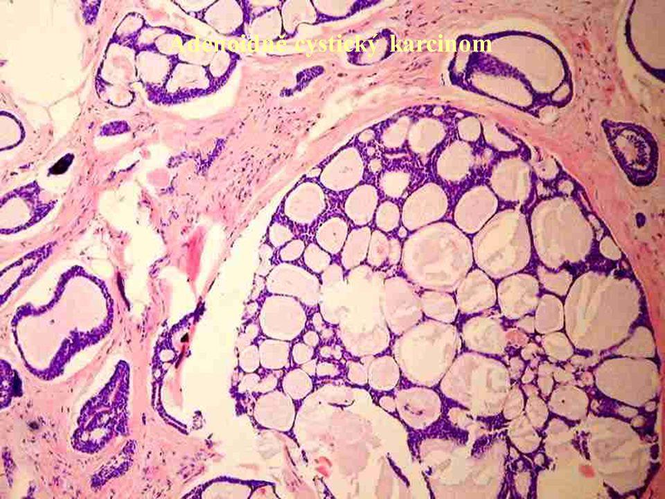 Adenoidně cystický karcinom