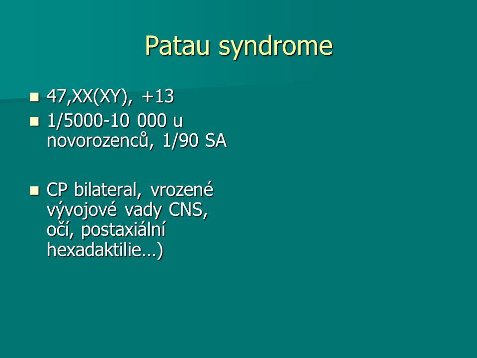 Patau syndrome 47,XX(XY), +13 47,XX(XY), +13 1/5000-10 000 u novorozenců, 1/90 SA 1/5000-10 000 u novorozenců, 1/90 SA CP bilateral, vrozené vývojové vady CNS, očí, postaxiální hexadaktilie…) CP bilateral, vrozené vývojové vady CNS, očí, postaxiální hexadaktilie…)