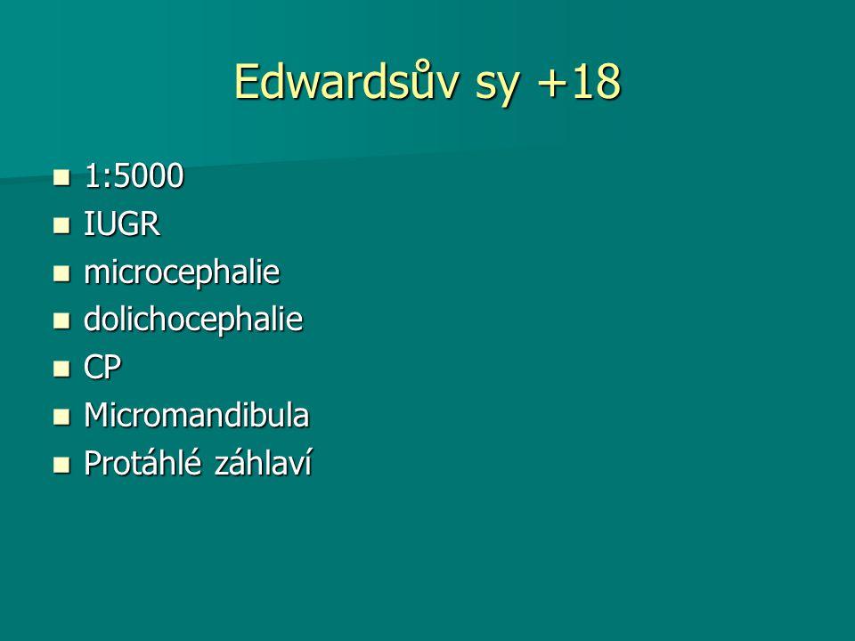 Edwardsův sy +18 1:5000 1:5000 IUGR IUGR microcephalie microcephalie dolichocephalie dolichocephalie CP CP Micromandibula Micromandibula Protáhlé záhlaví Protáhlé záhlaví