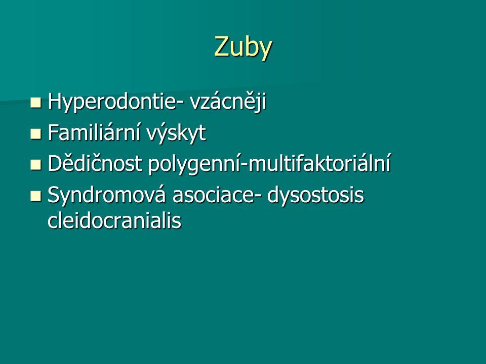 Zuby Hyperodontie- vzácněji Hyperodontie- vzácněji Familiární výskyt Familiární výskyt Dědičnost polygenní-multifaktoriální Dědičnost polygenní-multif
