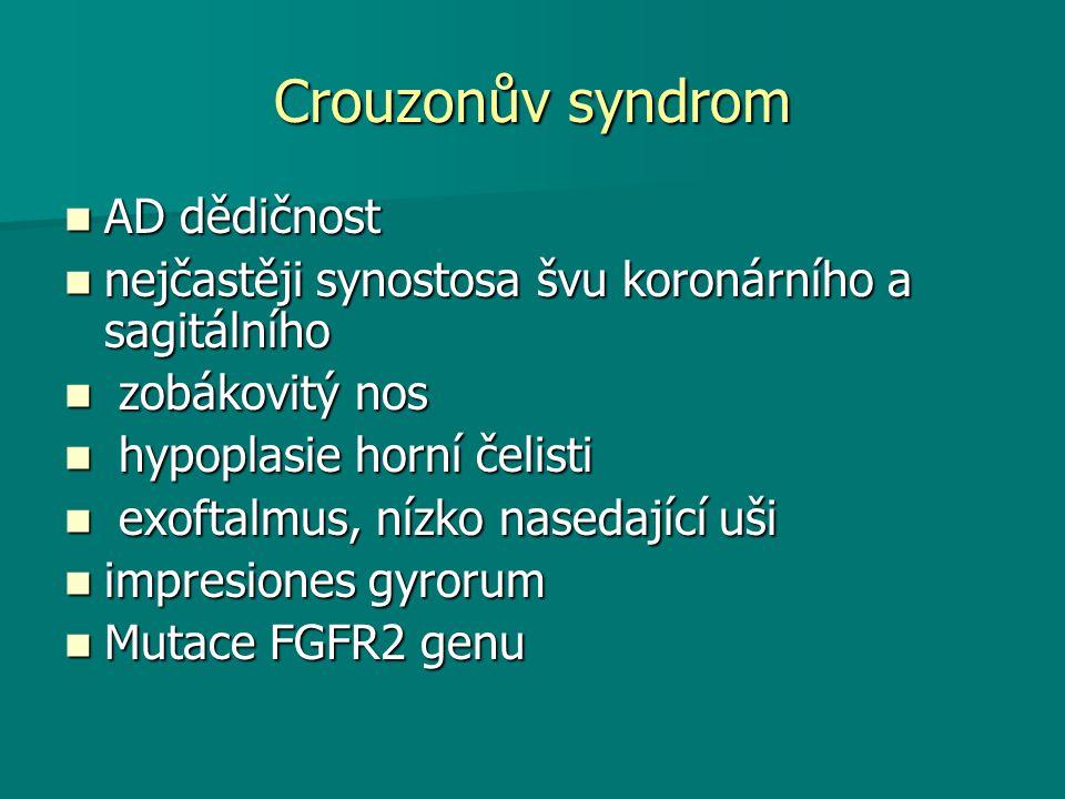 Crouzonův syndrom AD dědičnost AD dědičnost nejčastěji synostosa švu koronárního a sagitálního nejčastěji synostosa švu koronárního a sagitálního zobá