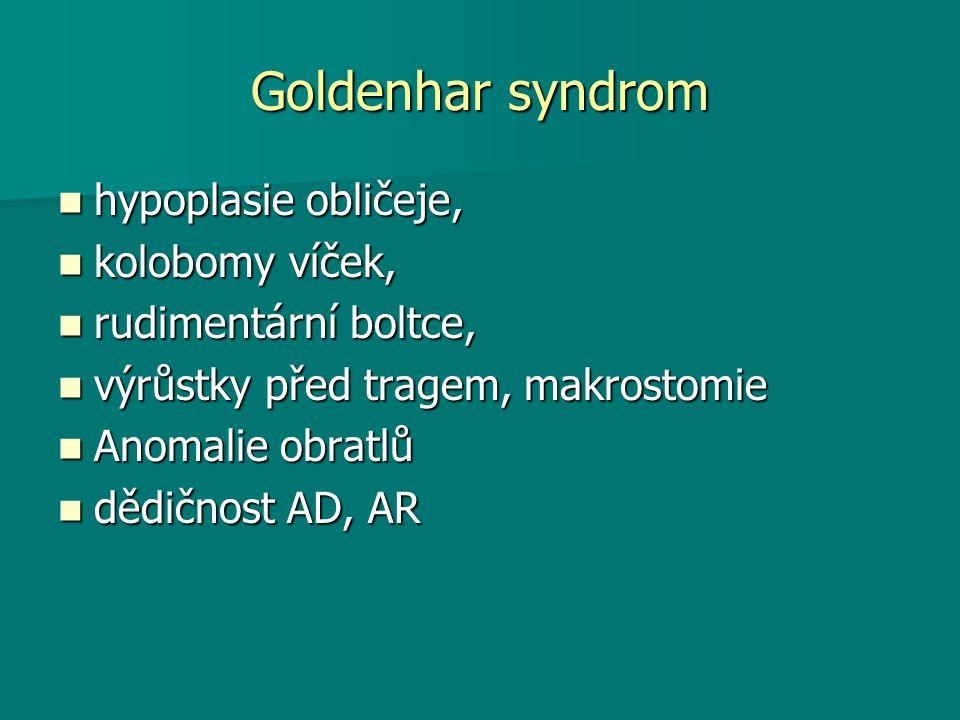 Goldenhar syndrom hypoplasie obličeje, hypoplasie obličeje, kolobomy víček, kolobomy víček, rudimentární boltce, rudimentární boltce, výrůstky před tragem, makrostomie výrůstky před tragem, makrostomie Anomalie obratlů Anomalie obratlů dědičnost AD, AR dědičnost AD, AR
