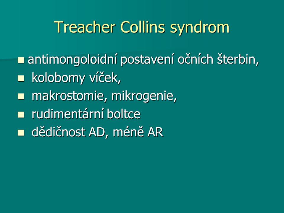 Treacher Collins syndrom antimongoloidní postavení očních šterbin, antimongoloidní postavení očních šterbin, kolobomy víček, kolobomy víček, makrostomie, mikrogenie, makrostomie, mikrogenie, rudimentární boltce rudimentární boltce dědičnost AD, méně AR dědičnost AD, méně AR