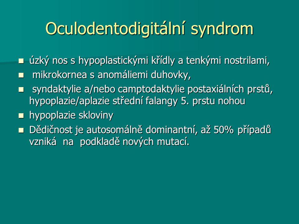 Oculodentodigitální syndrom úzký nos s hypoplastickými křídly a tenkými nostrilami, úzký nos s hypoplastickými křídly a tenkými nostrilami, mikrokornea s anomáliemi duhovky, mikrokornea s anomáliemi duhovky, syndaktylie a/nebo camptodaktylie postaxiálních prstů, hypoplazie/aplazie střední falangy 5.