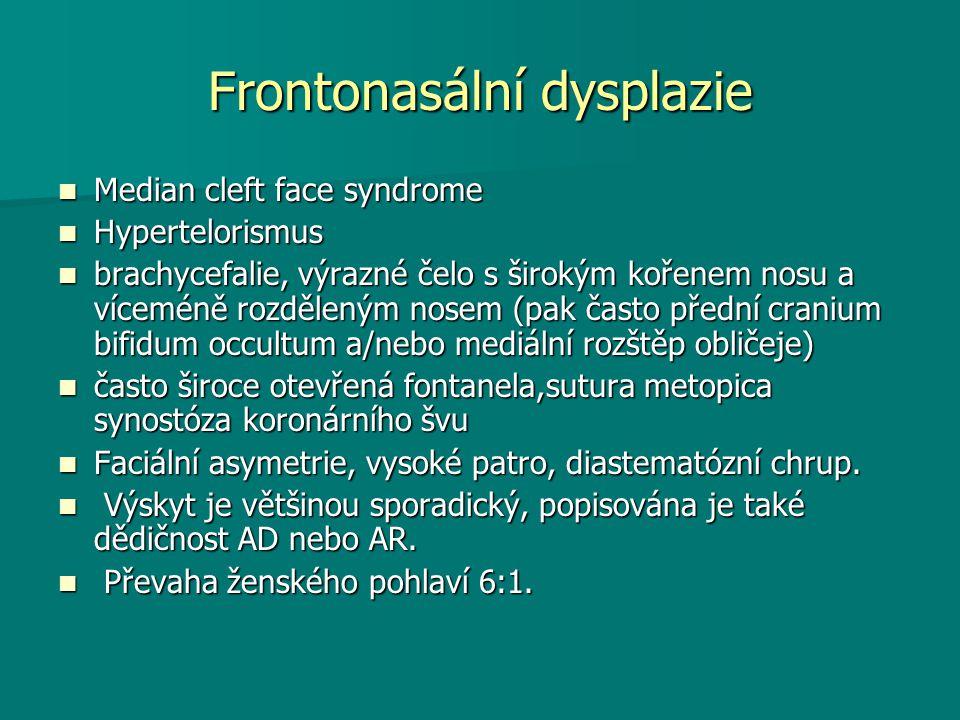 Frontonasální dysplazie Median cleft face syndrome Median cleft face syndrome Hypertelorismus Hypertelorismus brachycefalie, výrazné čelo s širokým kořenem nosu a víceméně rozděleným nosem (pak často přední cranium bifidum occultum a/nebo mediální rozštěp obličeje) brachycefalie, výrazné čelo s širokým kořenem nosu a víceméně rozděleným nosem (pak často přední cranium bifidum occultum a/nebo mediální rozštěp obličeje) často široce otevřená fontanela,sutura metopica synostóza koronárního švu často široce otevřená fontanela,sutura metopica synostóza koronárního švu Faciální asymetrie, vysoké patro, diastematózní chrup.