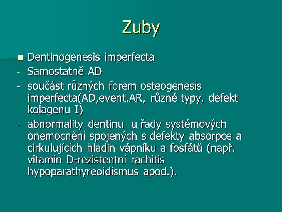 Zuby Dentinogenesis imperfecta Dentinogenesis imperfecta - Samostatně AD - součást různých forem osteogenesis imperfecta(AD,event.AR, různé typy, defe