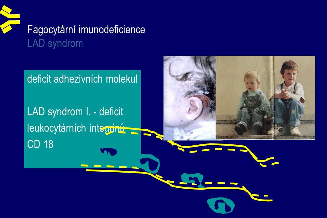 Fagocytární imunodeficience LAD syndrom deficit adhezivních molekul LAD syndrom I.