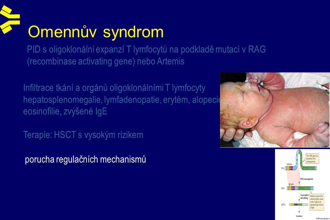 Omennův syndrom Infiltrace tkání a orgánů oligoklonálními T lymfocyty hepatosplenomegalie, lymfadenopatie, erytém, alopecie, eosinofilie, zvýšené IgE Terapie: HSCT s vysokým rizikem PID s oligoklonální expanzí T lymfocytů na podkladě mutací v RAG (recombinase activating gene) nebo Artemis porucha regulačních mechanismů
