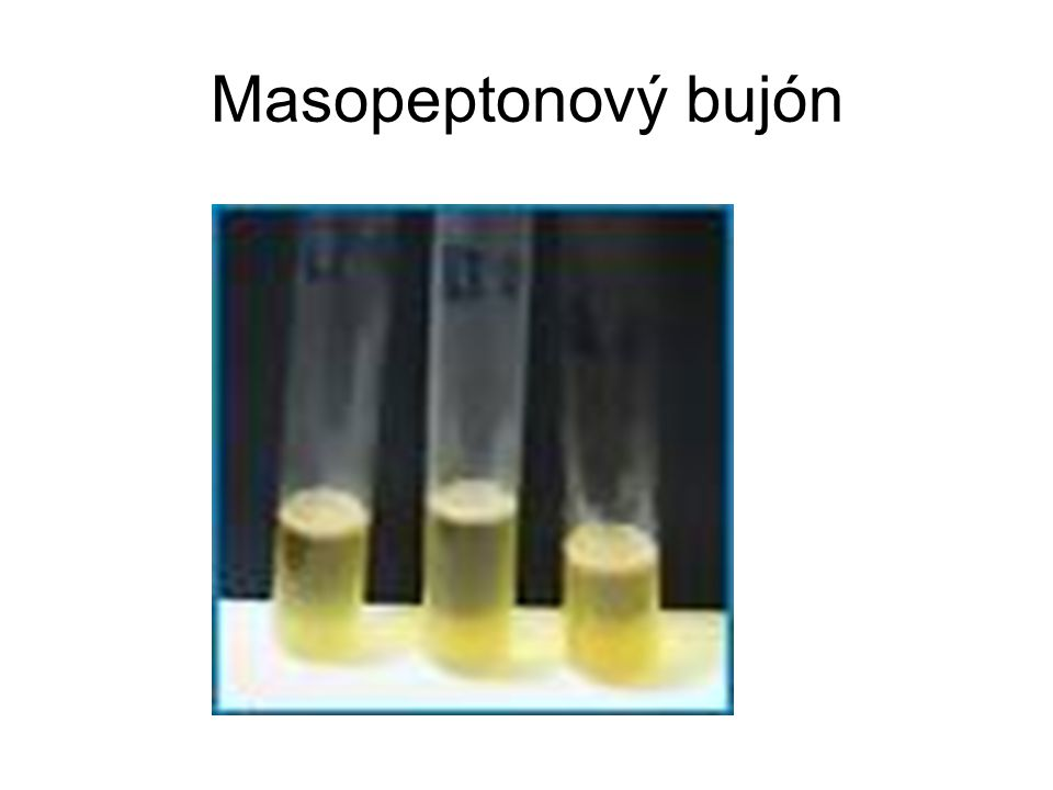 Masopeptonový bujón