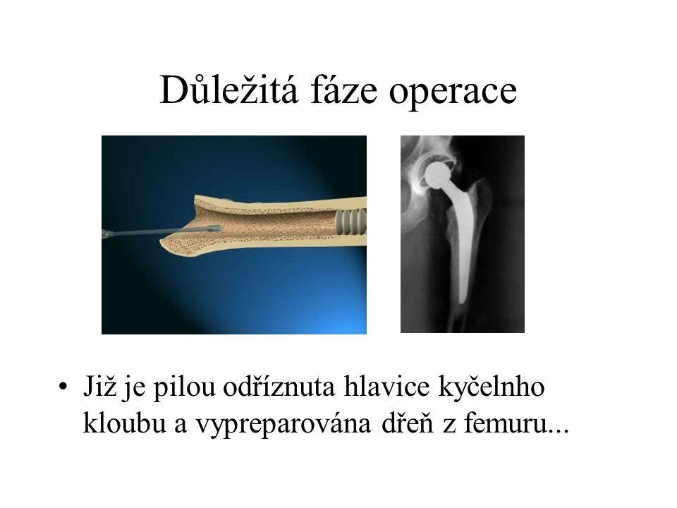Důležitá fáze operace Již je pilou odříznuta hlavice kyčelnho kloubu a vypreparována dřeň z femuru...