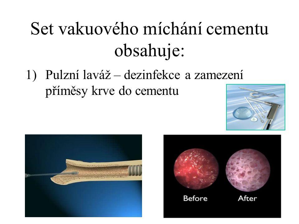 Set vakuového míchání cementu obsahuje: 1)Pulzní laváž – dezinfekce a zamezení příměsy krve do cementu