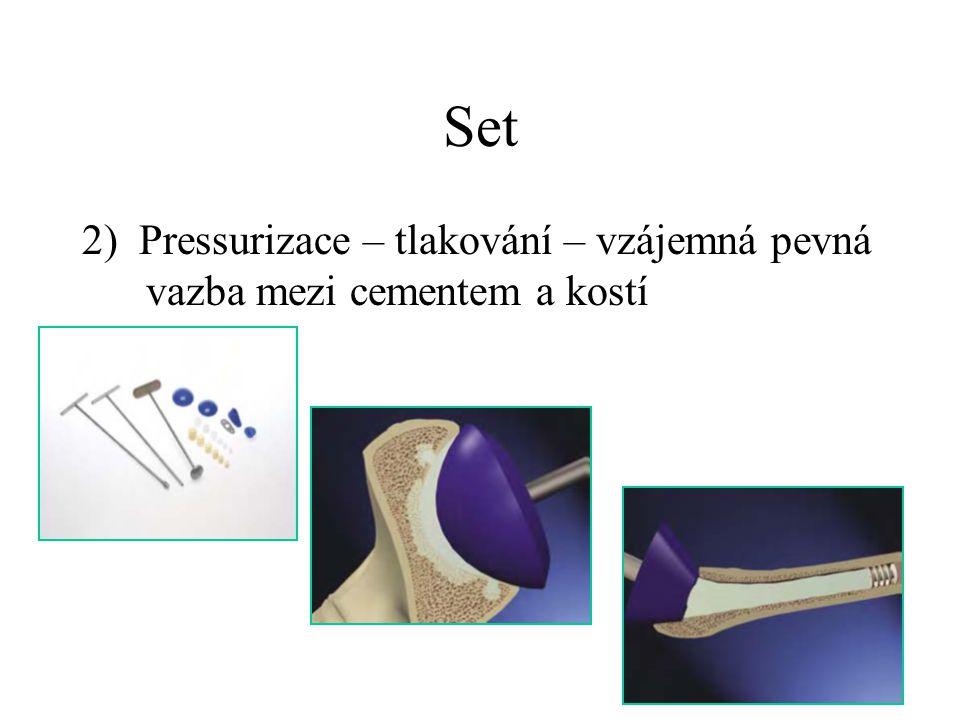 Set 3) Vakuové míchání cementu – uzavřený míchací systém pro přípravu cementu
