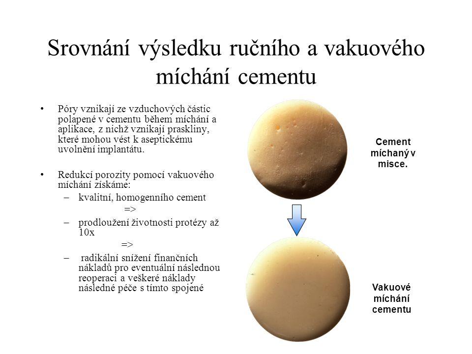 Srovnání výsledku ručního a vakuového míchání cementu Póry vznikají ze vzduchových částic polapené v cementu během míchání a aplikace, z nichž vznikaj