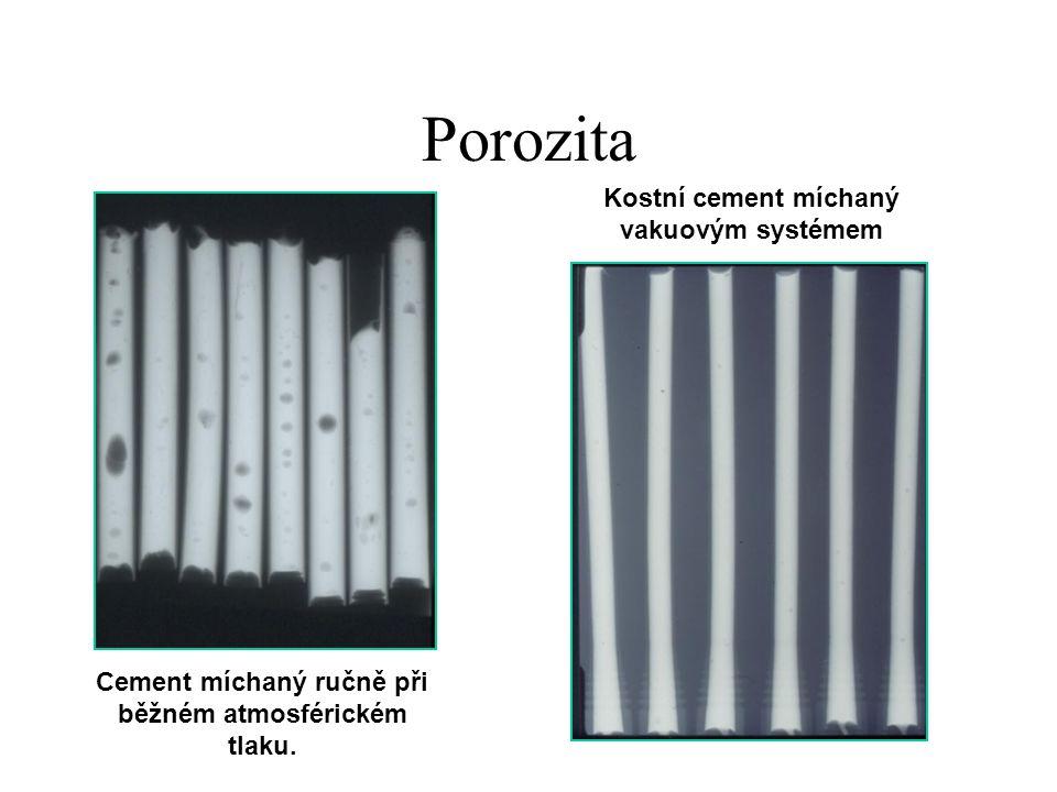 Porozita Cement míchaný ručně při běžném atmosférickém tlaku. Kostní cement míchaný vakuovým systémem
