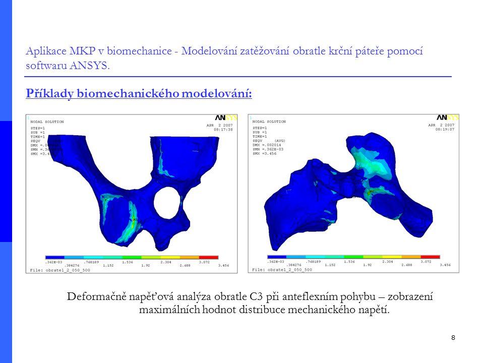 9 Aplikace MKP v biomechanice - Modelování zatěžování obratle krční páteře pomocí softwaru ANSYS.