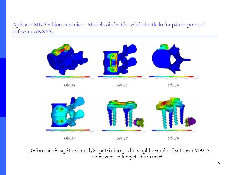 9 Aplikace MKP v biomechanice - Modelování zatěžování obratle krční páteře pomocí softwaru ANSYS. Deformačně napěťová analýza páteřního prvku s apliko