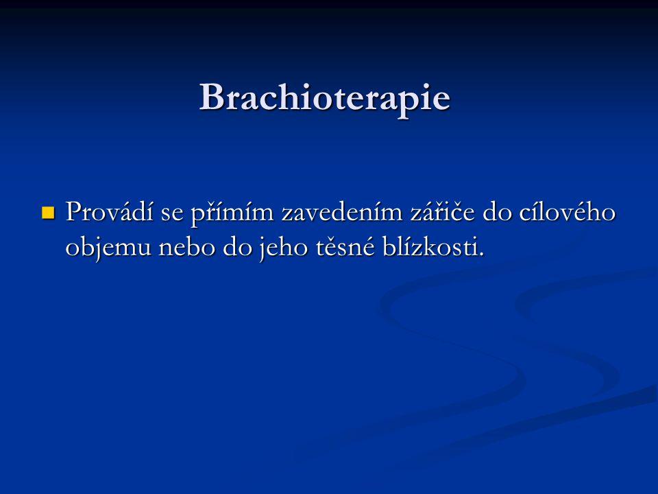Brachioterapie Provádí se přímím zavedením zářiče do cílového objemu nebo do jeho těsné blízkosti. Provádí se přímím zavedením zářiče do cílového obje