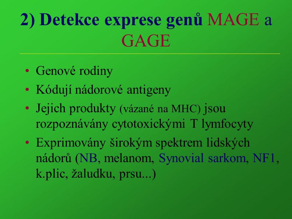 2) Detekce exprese genů MAGE a GAGE Genové rodiny Kódují nádorové antigeny Jejich produkty (vázané na MHC) jsou rozpoznávány cytotoxickými T lymfocyty