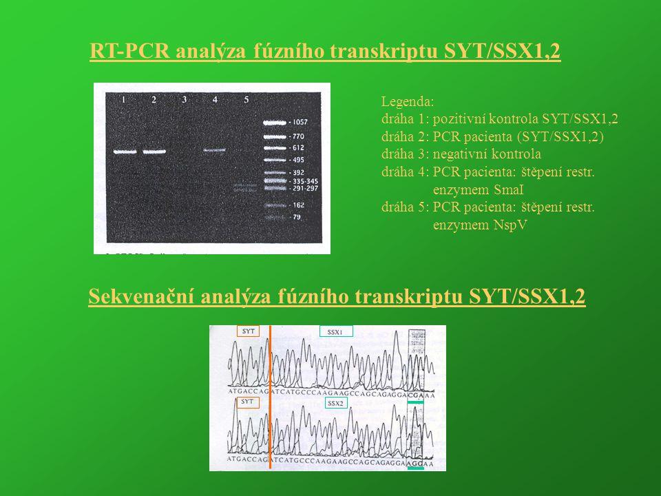 RT-PCR analýza fúzního transkriptu SYT/SSX1,2 Legenda: dráha 1: pozitivní kontrola SYT/SSX1,2 dráha 2: PCR pacienta (SYT/SSX1,2) dráha 3: negativní ko