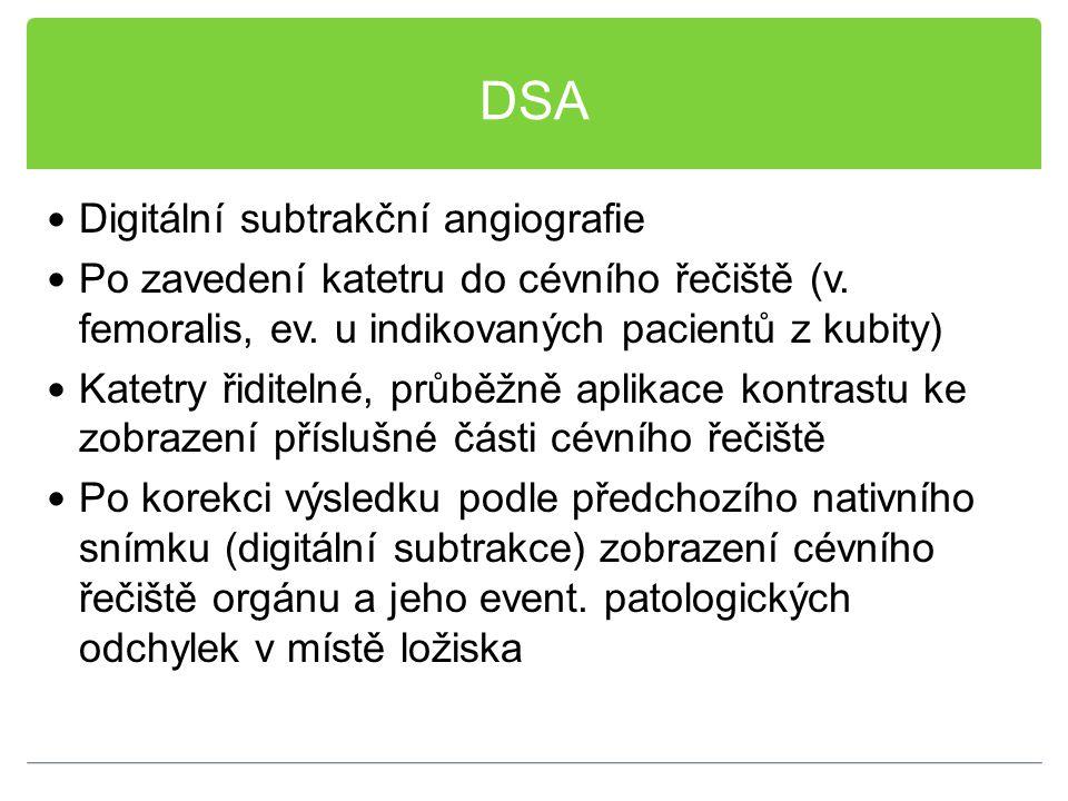 DSA Digitální subtrakční angiografie Po zavedení katetru do cévního řečiště (v. femoralis, ev. u indikovaných pacientů z kubity) Katetry řiditelné, pr