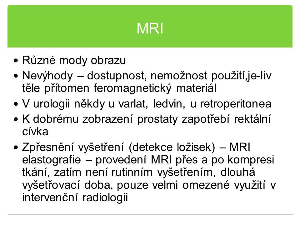 MRI Různé mody obrazu Nevýhody – dostupnost, nemožnost použití,je-liv těle přítomen feromagnetický materiál V urologii někdy u varlat, ledvin, u retro