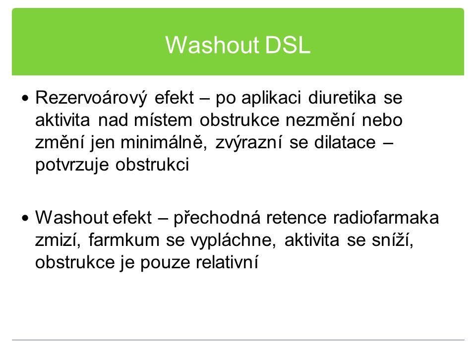 Washout DSL Rezervoárový efekt – po aplikaci diuretika se aktivita nad místem obstrukce nezmění nebo změní jen minimálně, zvýrazní se dilatace – potvr