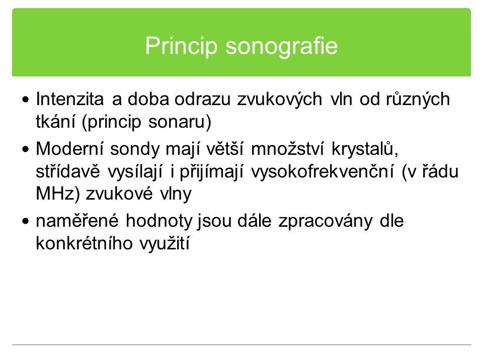 Princip sonografie Intenzita a doba odrazu zvukových vln od různých tkání (princip sonaru) Moderní sondy mají větší množství krystalů, střídavě vysíla