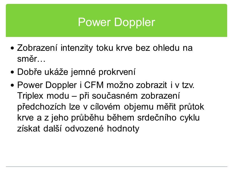 Power Doppler Zobrazení intenzity toku krve bez ohledu na směr… Dobře ukáže jemné prokrvení Power Doppler i CFM možno zobrazit i v tzv. Triplex modu –