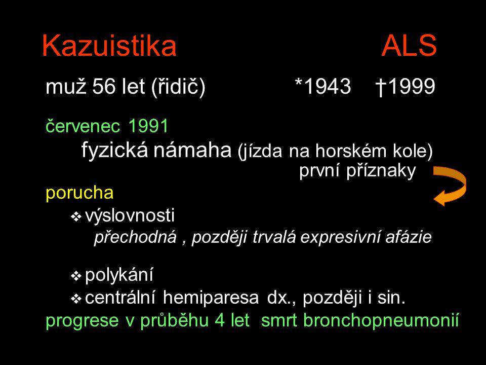 Kazuistika ALS muž 56 let (řidič) *1943 †1999 červenec 1991 fyzická námaha (jízda na horském kole) první příznaky porucha v výslovnosti přechodná, později trvalá expresivní afázie v polykání v centrální hemiparesa dx., později i sin.