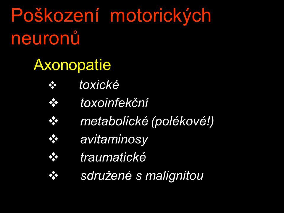 Poškození motorických neuronů Axonopatie v toxické v toxoinfekční v metabolické (polékové!) v avitaminosy v traumatické v sdružené s malignitou