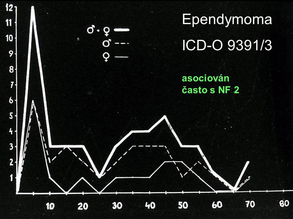 Ependymoma ICD-O 9391/3 asociován často s NF 2