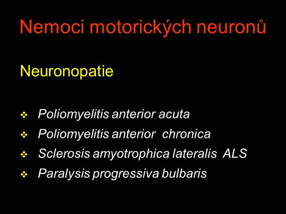 Nemoci motorických neuronů 1.paralysis spastica spinalis 2.