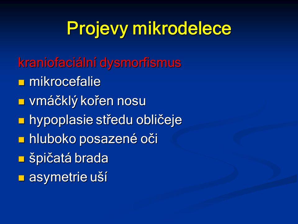Projevy mikrodelece kraniofaciální dysmorfismus mikrocefalie mikrocefalie vmáčklý kořen nosu vmáčklý kořen nosu hypoplasie středu obličeje hypoplasie